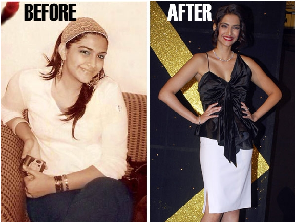 Sonam Kapoor From Fat To Fit