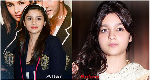 Alia Bhatt's Weight Loss before and after