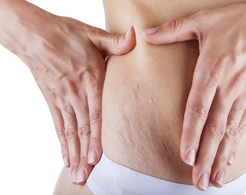 Stretch Marks Causes Myths Home Remedies for Treatment and Prevention