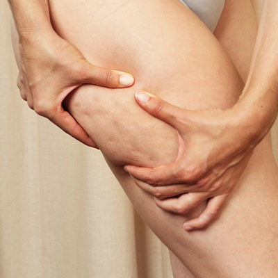 Cellulite – Facts and Fiction