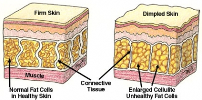 How To Prevent Cellulite Formation (2)