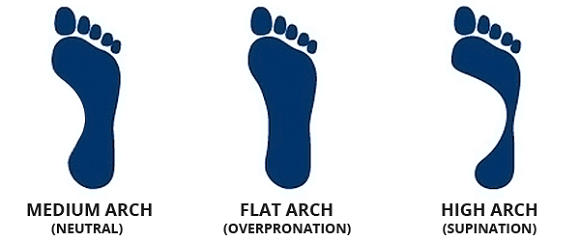 Foot arch- right running shoes
