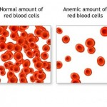 anemic red blood cells- anemia n weightloss