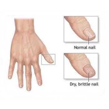 dry brittle nails