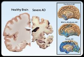alzheimer's disease and red meat