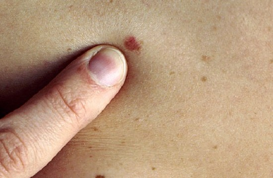 Know Whether Your Mole Is Cancerous Or Not