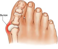 what is bunion