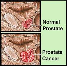 prostrate cancer india