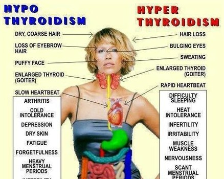 Thyroid And Fatigue-Everything You Need To Know - Indian ...