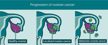 ovarian cancer progression