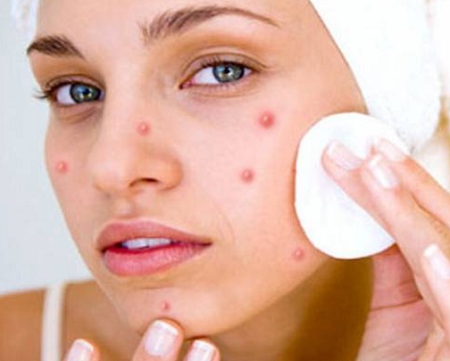 Acne-Top 5 Amazing benefits of Tea Tree Essential Oil for skin health