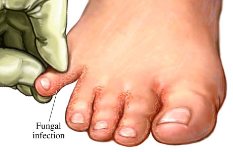 Home Remedies For Treating Foot Fungus