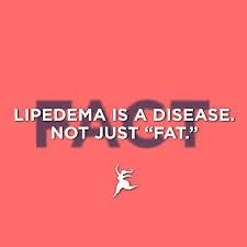 lipedema is not fat