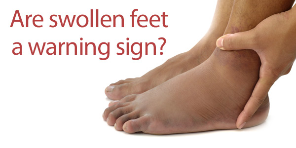 Swollen Feet What Your Looks Indicate About Your Health - 10 Cancer Symptoms You May Likely Ignore