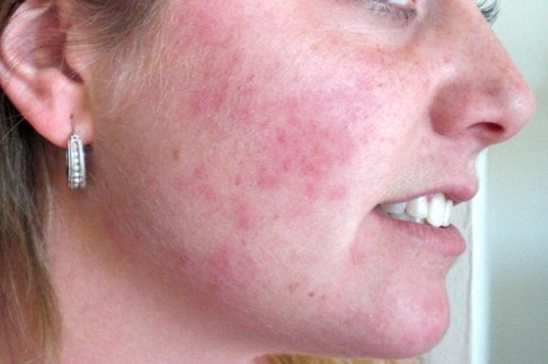 rash-on-face-What Your Looks Indicate About Your Health