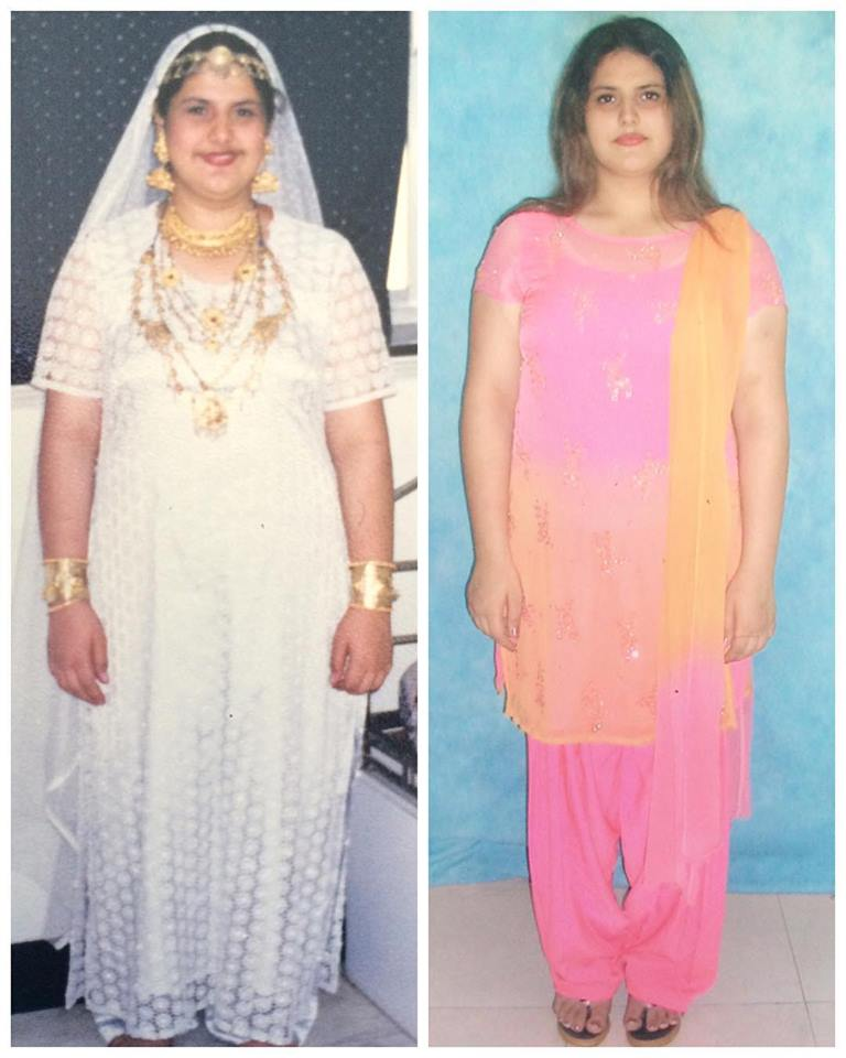 Zareen Khan Images Weight Loss And Stretch Marks
