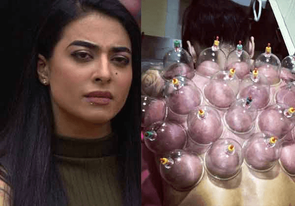 Bani J Underwent The Chinese Cupping Therapy