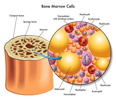 What Should You Know About Bone Marrow Transplant