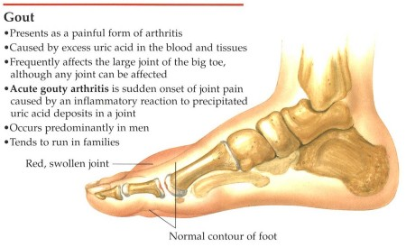 How To Control Gout Through Diet