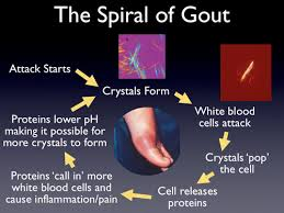 gout how it starts
