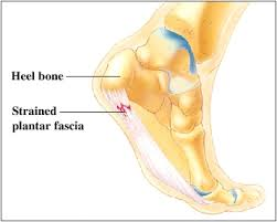 Different types of foot pain and treatment