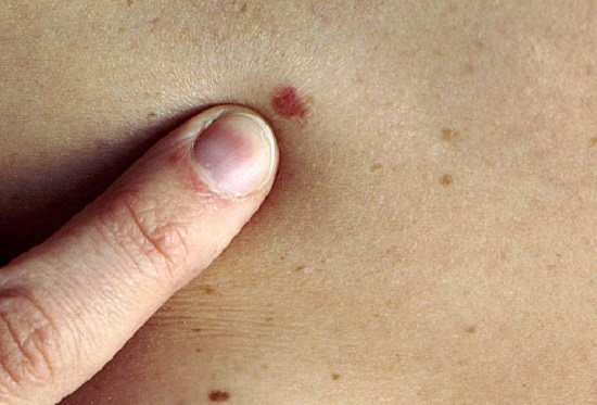skin cancer and how to treat it