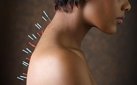 woman acupuncture