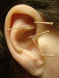 acupuncture for weight loss 1