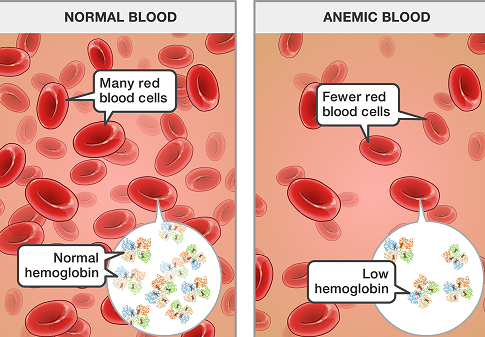 Traditional Methods To Fight Anaemia