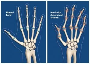 Arthritis affects hands