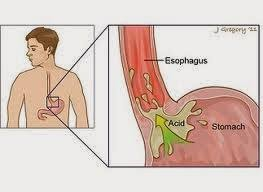 All about Esophageal Ulcers
